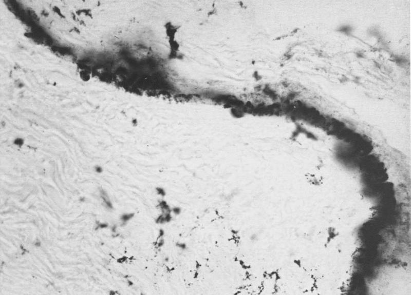 Рис.3. Кожа женщины 70 лет. Определяется резкое увеличение микроконгломератов солей кальция в области базального (росткового) слоя эпидермиса. Окраска по Косса, ув. 40х.
