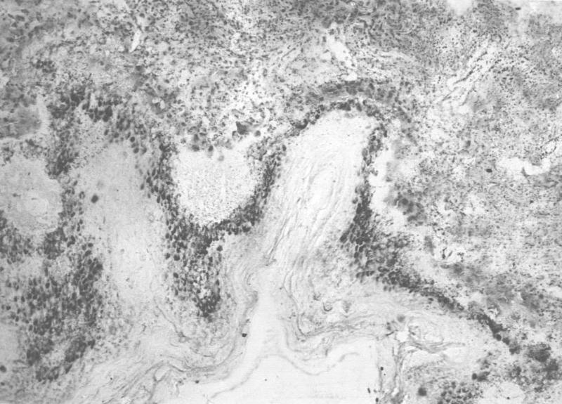 Кожа ребенка 12 лет. Определяются микроконгломераты солей кальция в малом количестве в основном в области базального (росткового) слоя эпидермиса. Окраска по Косса, ув. 40х.